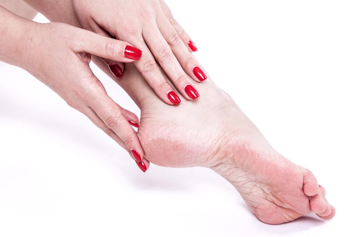 Emu Oil products for Plantar Fasciitis